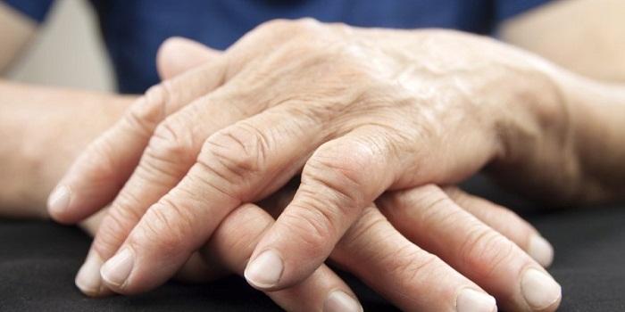 11 remédios caseiros para artrite reumatóide